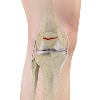 orthopedic and fracture clinic portland