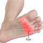 Forefoot pain