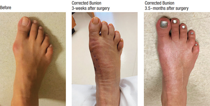 Minimally Invasive Bunion Correction