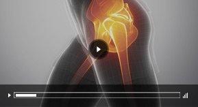 Patient Education Video